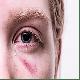 La violencia a compañeros íntimos, abuso de ancianos, y el abuso infantil